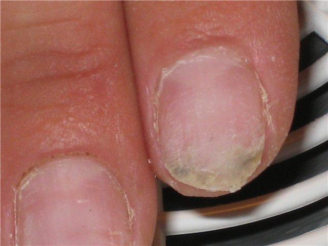 Грибок ногтя что нельзя делать