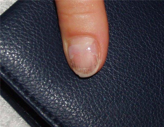 Лечение грибка ногтей народным средствами